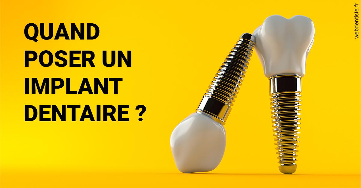https://dr-lancia-claudio.chirurgiens-dentistes.fr/Les implants 2