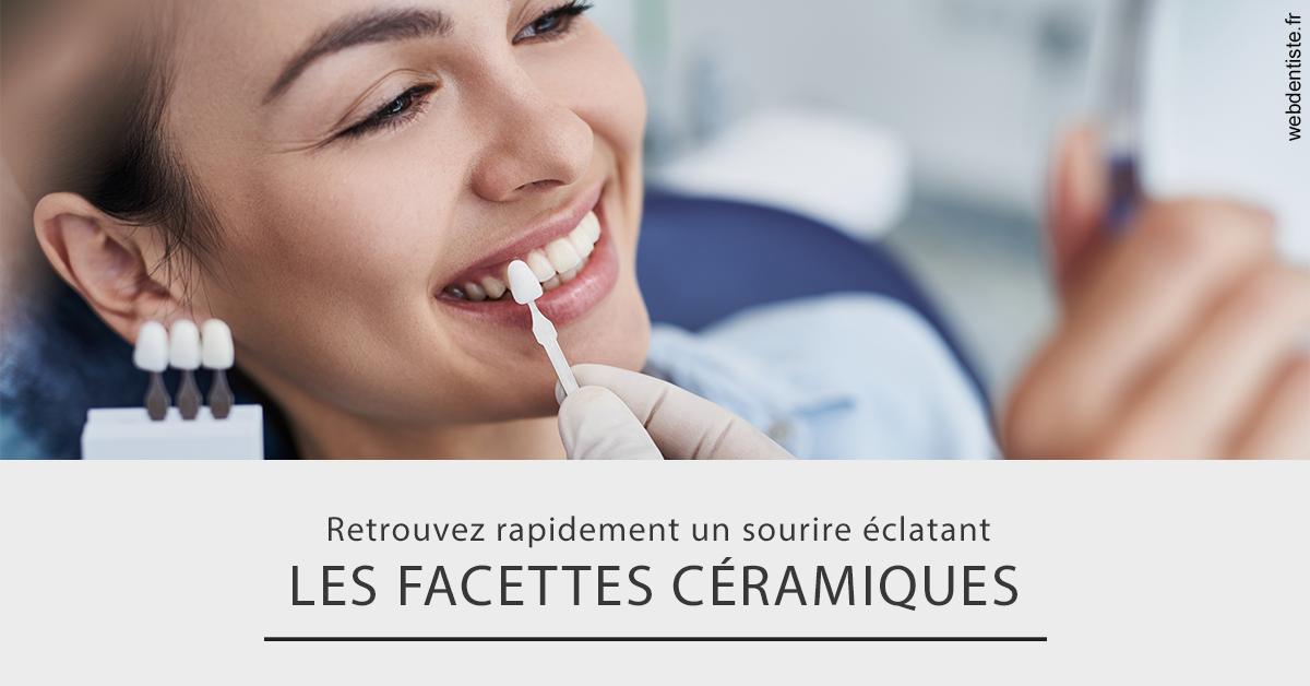 https://dr-lancia-claudio.chirurgiens-dentistes.fr/Les facettes céramiques 2