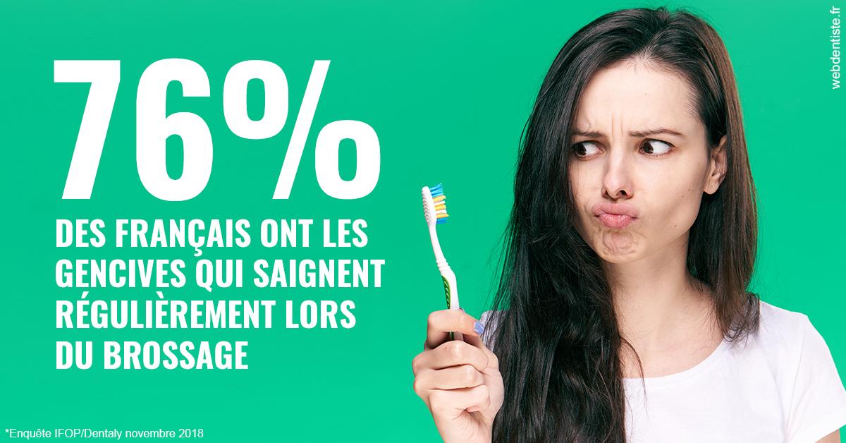 https://dr-lancia-claudio.chirurgiens-dentistes.fr/76% des Français 1