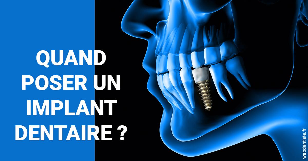 https://dr-lancia-claudio.chirurgiens-dentistes.fr/Les implants 1